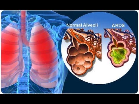 PCEP 2014 September Respiratory Disorders
