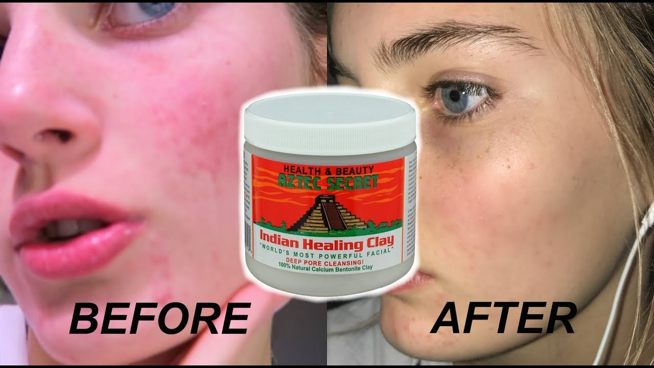 how i got clear skin from the aztec face mask