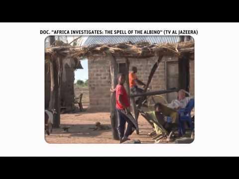 TV Folha #85 - Bloco 3 (Albinos da Tanzânia)