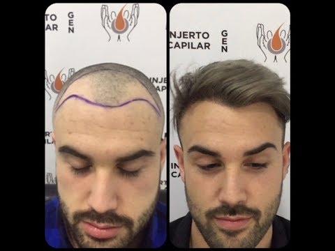 Injerto antes y después. Cirugía de Restauración de 1ª Línea Frontal Completa