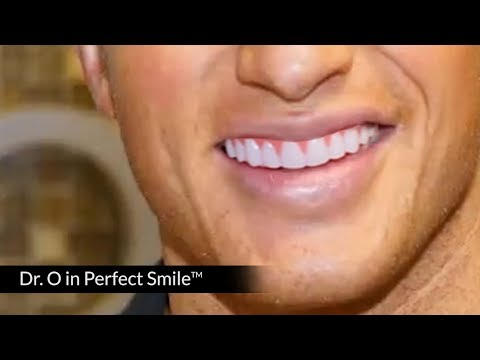 Why are Dentists Laughing at Perfect Smile Veneers for $14.99!?