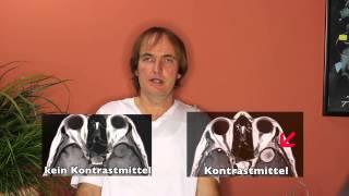 Kontrastmittel bei der Kernspintomographie - MRT Untersuchung - Patienteninfo vom Facharzt