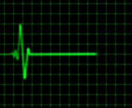 Animated heart rate monitor - electrocardiogram