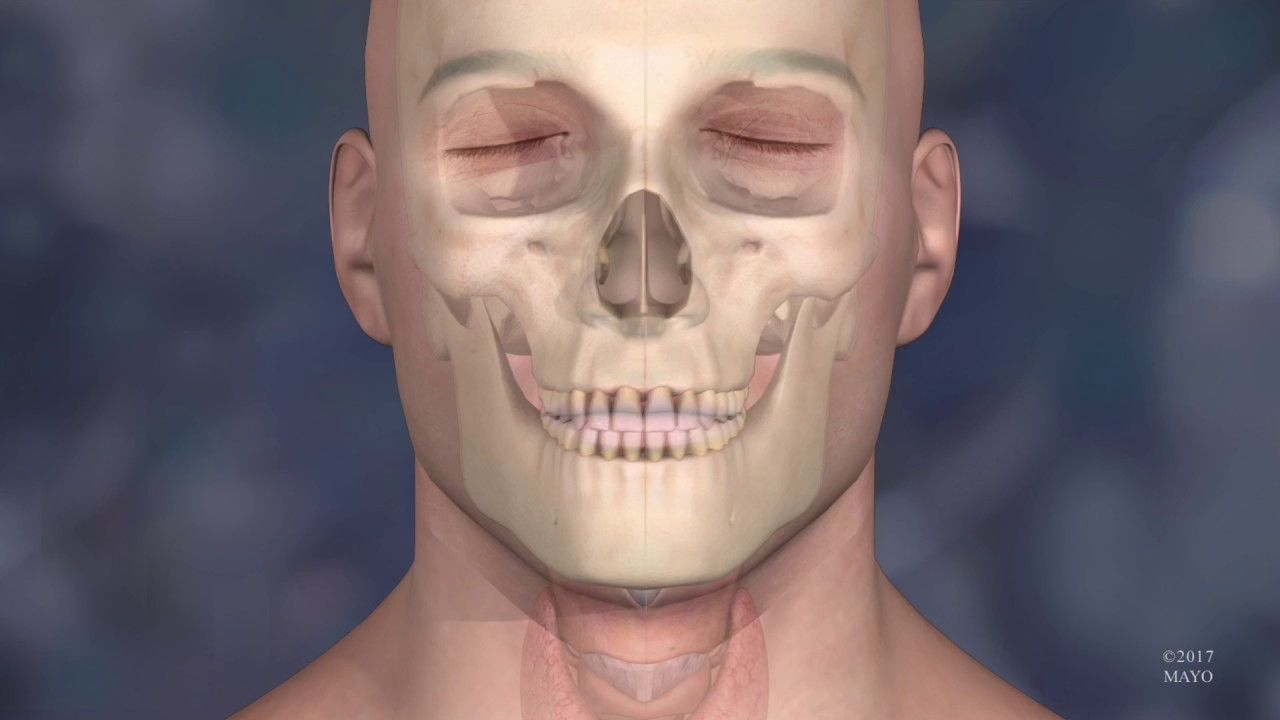 3D Printing and Virtual Surgical Planning Aid in the Mayo Clinic's