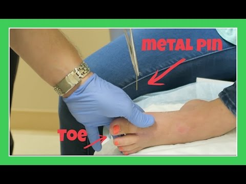 DR PULLS METAL PIN OUT OF KATIE'S TOE | Flippin' Katie