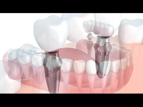 "Tupelo, MS - Dr. Richard Caron ""Your Dental Health"" Cosmetic Vs. Resorative"