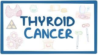 Thyroid cancer - causes, symptoms, diagnosis, treatment, pathology