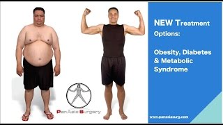Weight Loss Surgery in Singapore - PanAsia Surgery Group