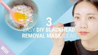 3 Home Remedies For Different Types of Blackhead Concerns | DIY Blackhead Remover Mask
