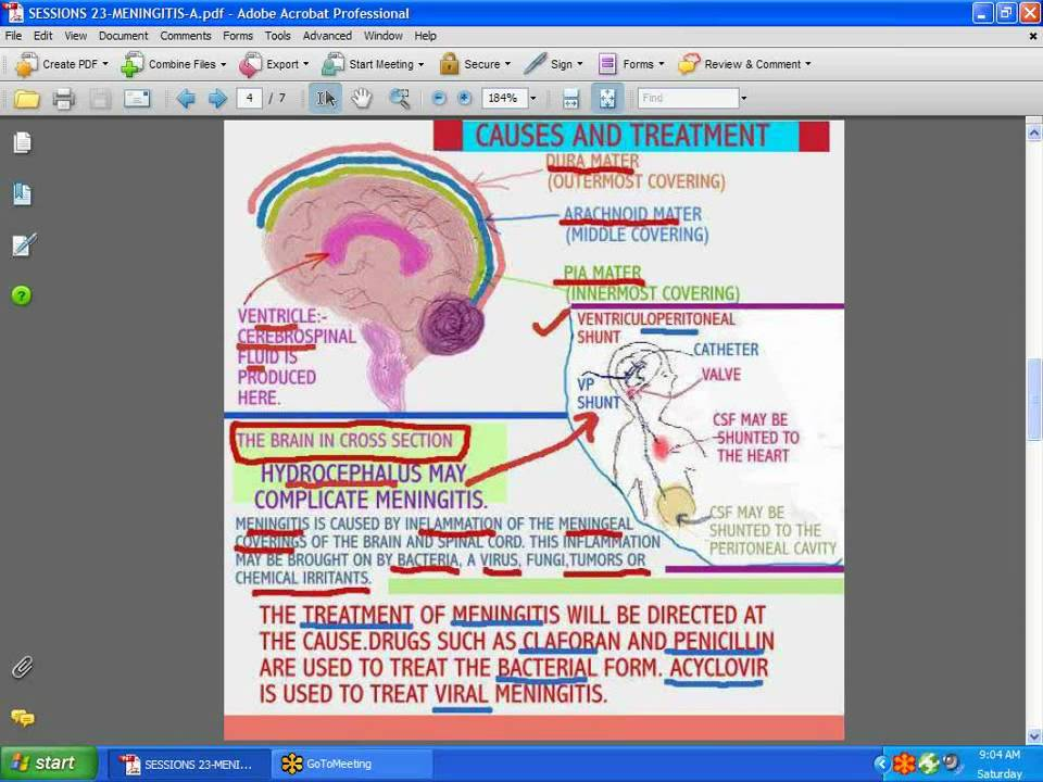 Sessions For Nurses 23 Meningitis Youtube