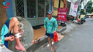 Bất ngờ gặp người đàn ông tủi thân chống gậy đi xin từng đồng để phẩu thuật chân - PhuTha