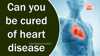 Can you be cured of heart disease | Health & Beauty Tips in English