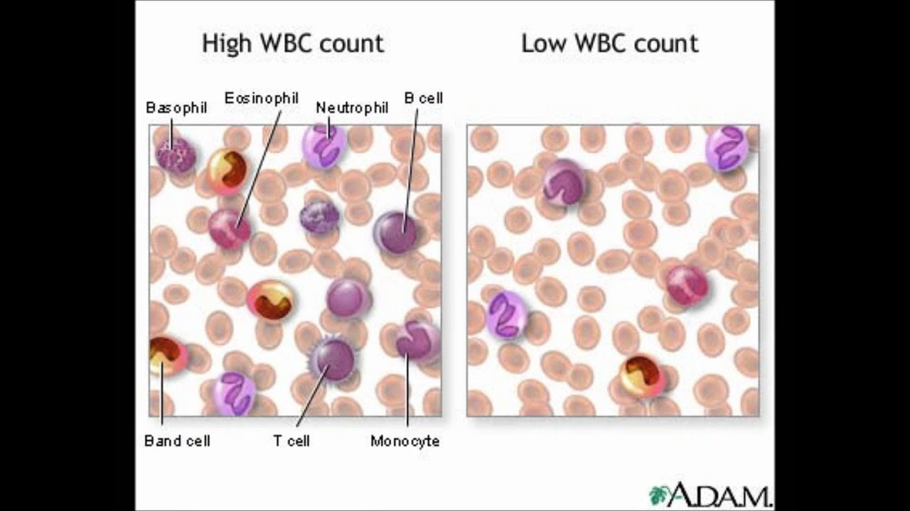 an analysis of the differential white blood cell count Synovial fluid analysis is helpful for the white cell count, differential how sensitive is the synovial fluid white blood cell count in diagnosing.