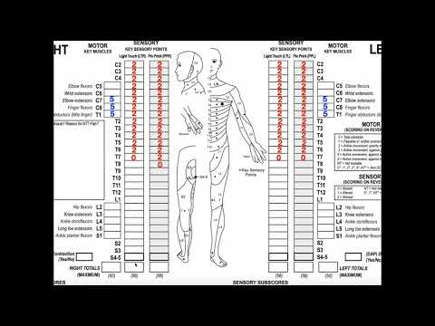 Classifying Spinal Cord Injuries using ASIA Scoring [Example 2]