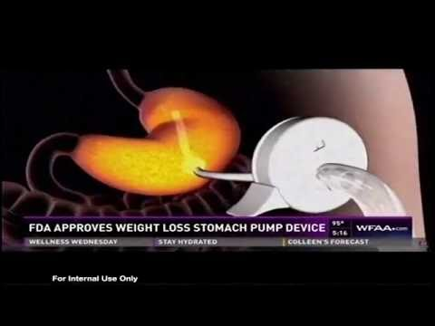 FDA approves a new stomach pump for weight loss