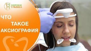Аксиография. 💻 Врач-гнатолог расскажет в каких случаях применяют аксиографию. Здоровая улыбка.(, 2018-04-28T07:40:48.000Z)