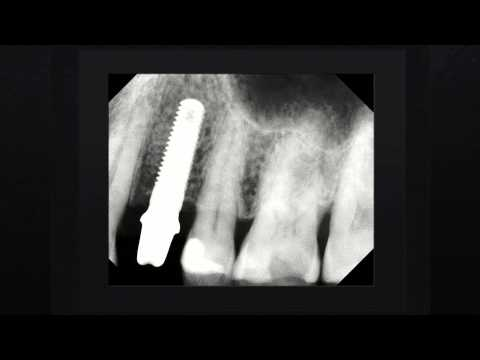 Dental Implants Austin TX | Call Us: (512)379-5752