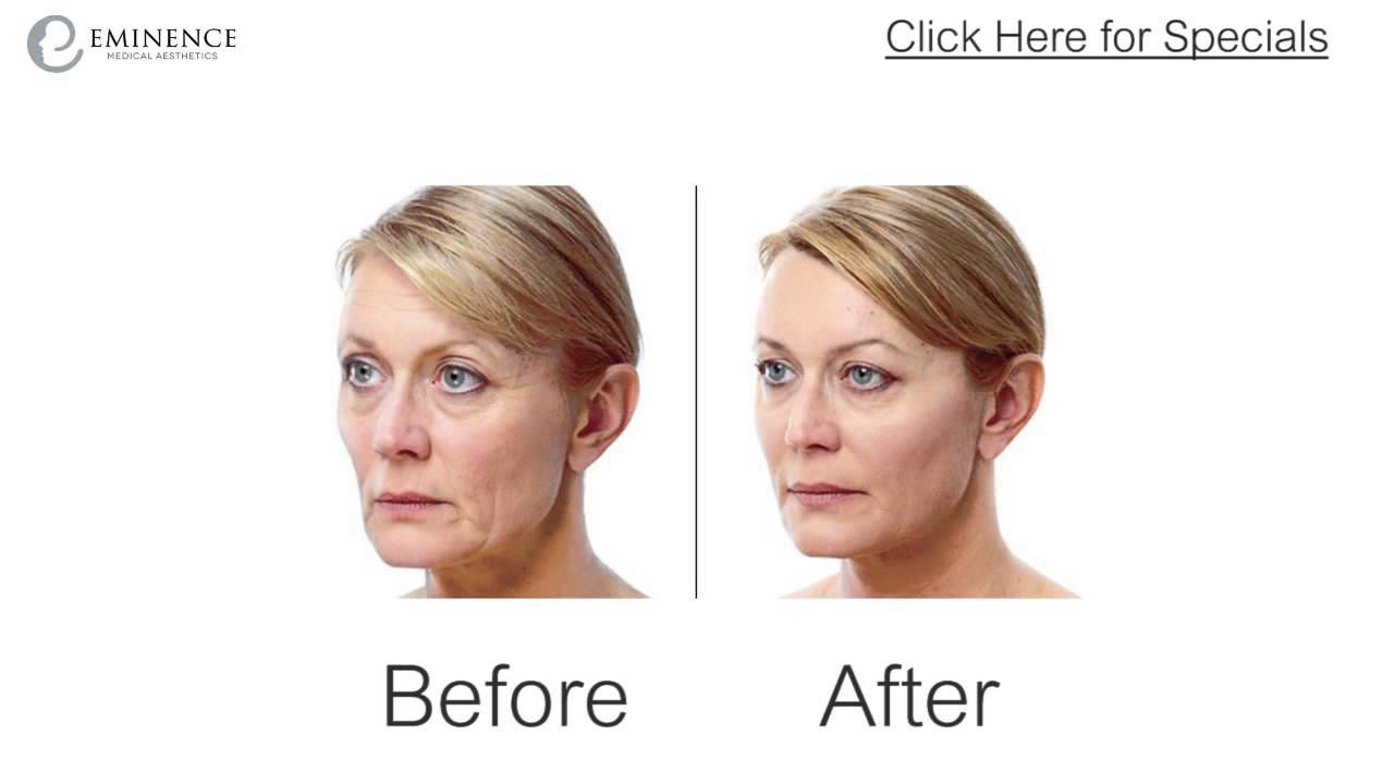 Juvederm & Juvederm Voluma Before & After Photos in Princeton New Jersey