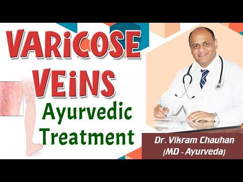 Varicose Veins Ayurvedic Treatment - Dr. Vikram Chauhan