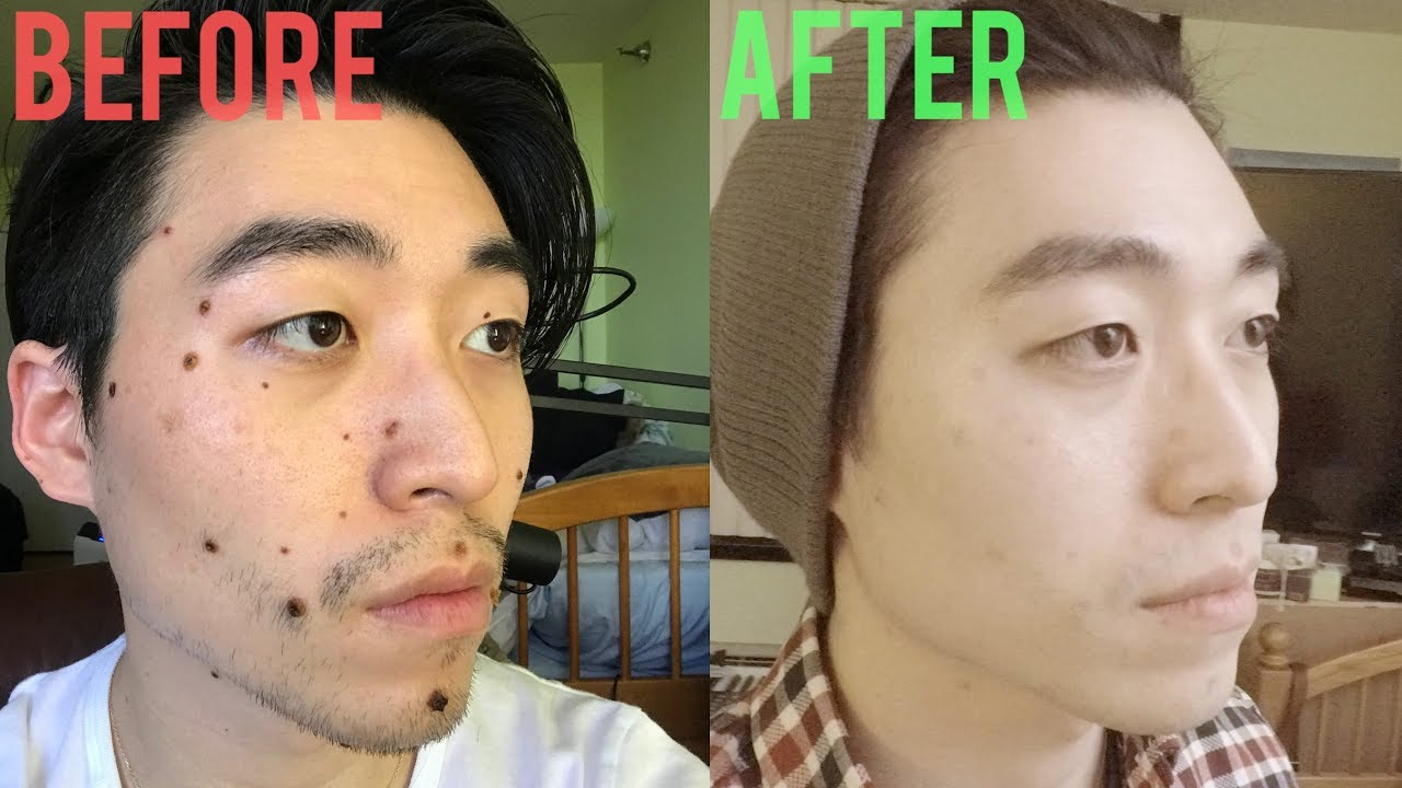 REMOVED ALL THE MOLES/BEAUTY MARKS ON MY FACE AND NECK (LASER REMOVAL)