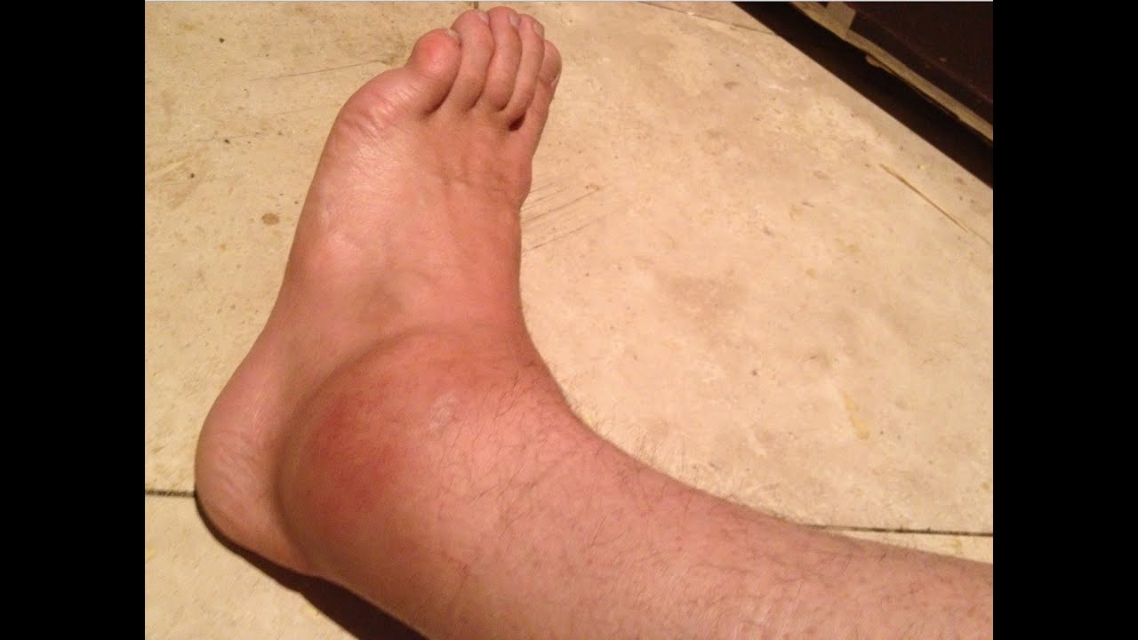 Bilderesultat for ankle sprain