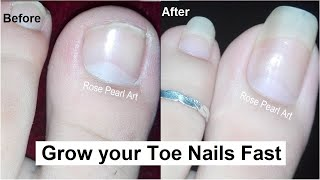 How to Grow Toe Nails Healthy and Fast- IMPORTANT STEPS- Toenail Growth Journey   Rose Pearl