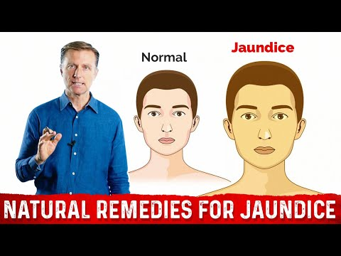 The Different Causes of Jaundice