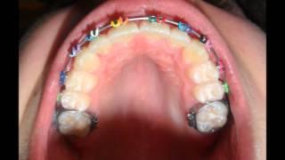 Aparelho ortodontico Antes e depois-9 meses- Braces Before and After