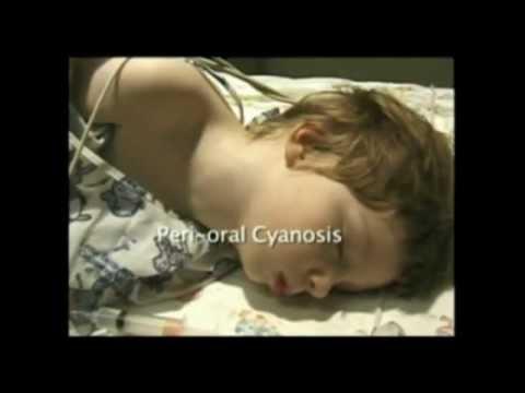 PALS Cardiac Core Case 02