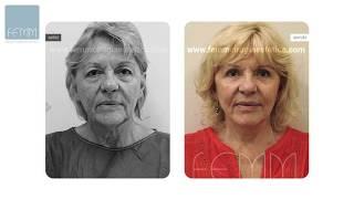 LIPOFILLING: las ventajas de la lipotransferencia con grasa