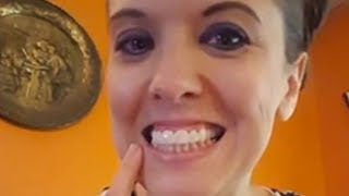 Mom in Texas get Incredible Smile Makeover from Brighter Image Lab! MUST SEE!