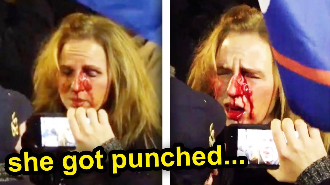 THIS GUY BROKE HER NOSE...