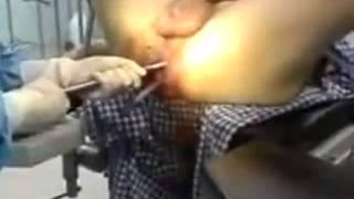 Cirugía anal