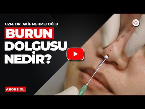 Uzm. Dr. Akif Mehmetoğlu - Burun Dolgusu