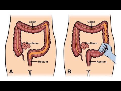 what-is-ibs---irritable-bowel-syndrome-|-dr.education-hindi