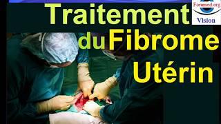 Traitements du Fibromes utérins