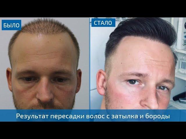 Результат пересадки волос на голову мужчине с бороды и затылка - 4300 графтов