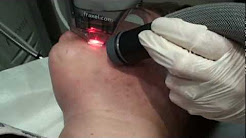 hqdefault - Fraxel Laser For Acne Scar Removal