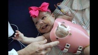 Ce bébé est né avec le cœur hors de la poitrine !