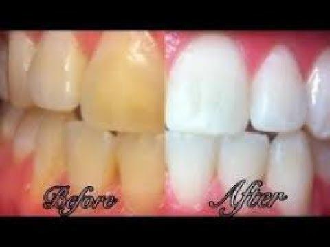 Mengejutkan Inilah Tips Memutihkan Gigi Yang Hitam Secara
