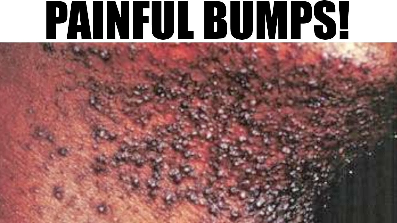 what does bump on pubic hair look like ingrown hair razor bumps or pimples youtube