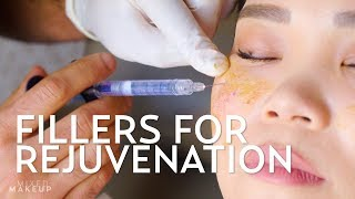 Fillers for Youthful Cheeks and Eyes  | PLASTIC with Dr. Dhir