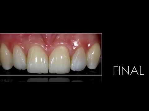 Sneak Peek - Direct Resin in the Anetrior Dentition