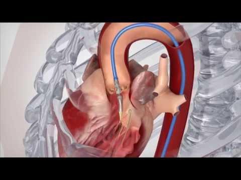 Complications of heart valve surgery