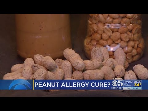 Bay Area Firm May Be On Verge Of Peanut Allergy Cure