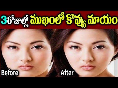 3రోజుల్లో ముఖంలోకొవ్వు మాయం || Face Exercise || Naturally Lose Face Fat Fast || SumanTV