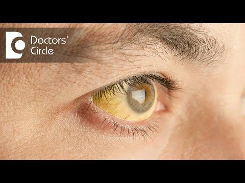 Symptoms & complications  of Hepatitis B  Can Hepatitis B be cured? - Dr. Ramakrishna Prasad