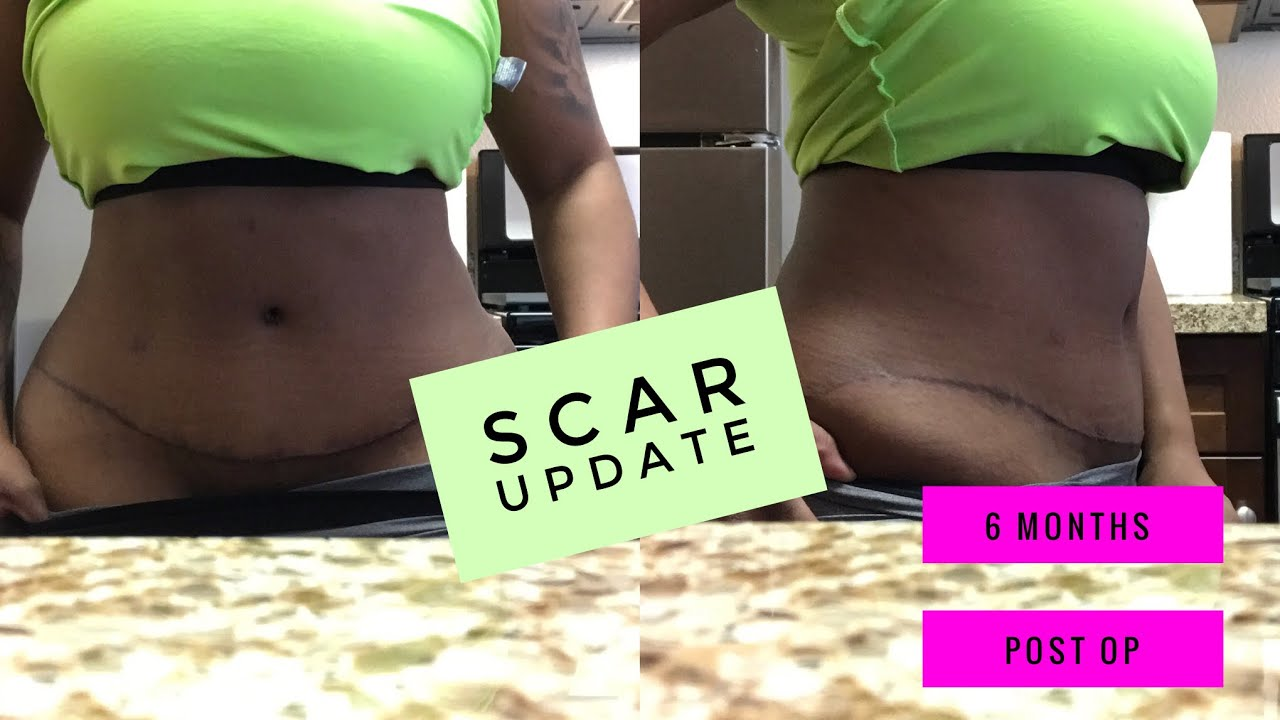 Tummy Tuck surgery before and after | 6 Months post op | scar update