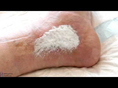 Amicapsil and Acapsil – Treatment for wounds in humans