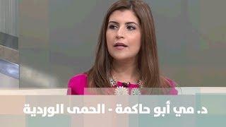 د. مي أبو حاكمة - الحمى الوردية